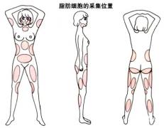 韦元强:产后能做自体脂肪丰胸吗?